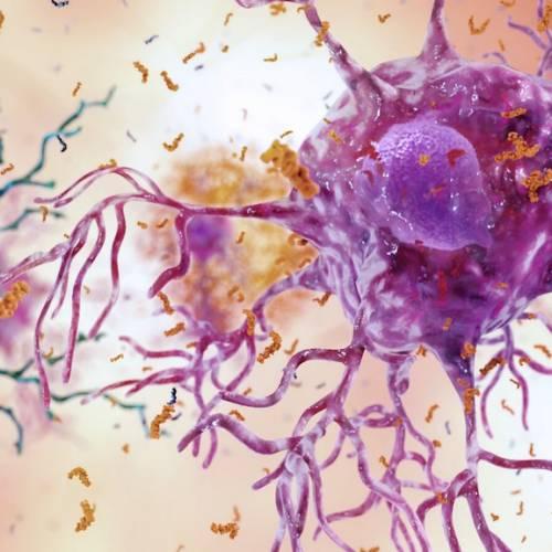 Gena APOE4 responsabila pentu boala  Alzheimer afectează funcția celulelor imune ale creierului