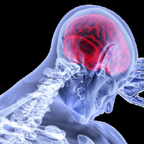 29 0ctombrie – Ziua Mondiala a Accidentului Vascular Cerebral (AVC)